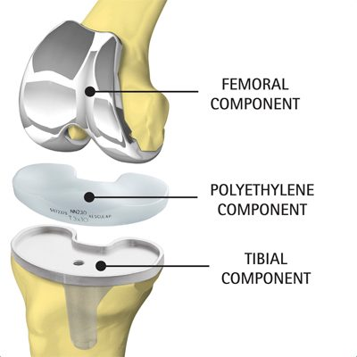 Illustration showing knee implant components - Femoral, Polyethylene and Tibial